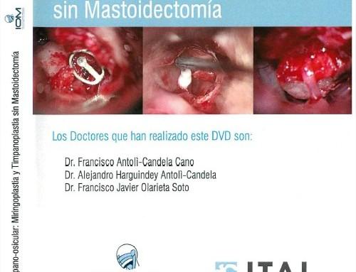 Reconstrucción tímpano-osicular: Miringoplastia y Timpanoplastia sin Mastoidectomía
