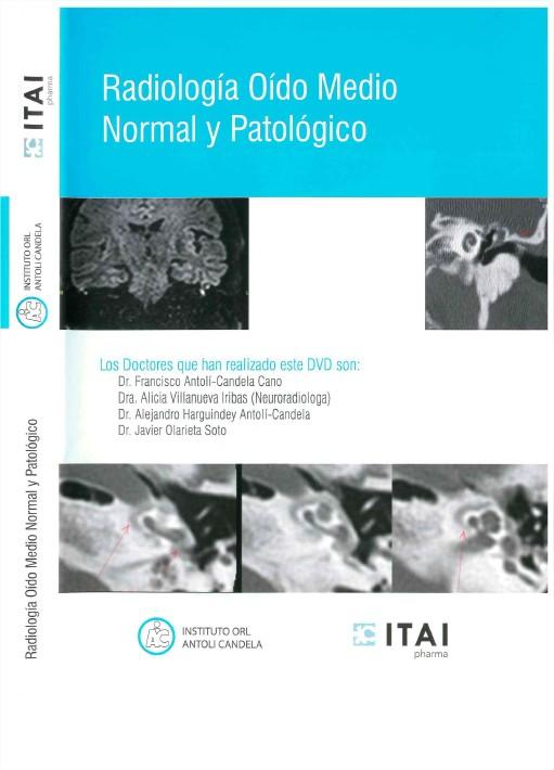 Radiología Oído Medio Normal y Patológico